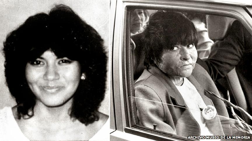 Carmen Quintana before (left) and after (right) the attack. Courtesy: Archivo Museo de la Memoria